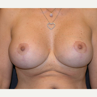 45-54 year old woman treated with Breast Implants after 3455496