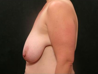 Mommy Makeover Breast Lift and Reduction