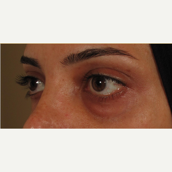 25-34 year old woman treated with Voluma for under eye bags before 3441211