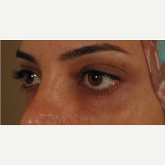 25-34 year old woman treated with Voluma for under eye bags after 3441211