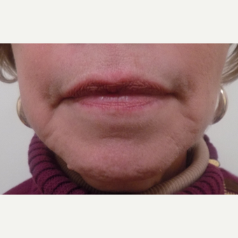 Juvederm before 3036102