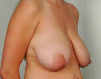 30 year old woman treated with Mommy Makeover: Breast Lift & Reduction before 3026507