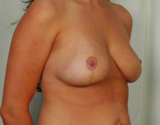 30 year old woman treated with Mommy Makeover: Breast Lift & Reduction after 3026507