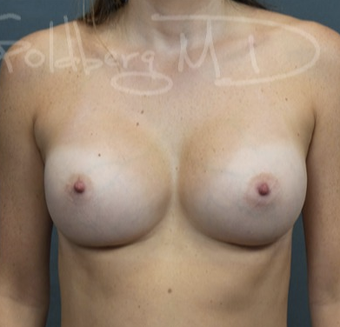 25-34 year old woman treated with Breast Augmentation after 3649868