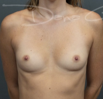 25-34 year old woman treated with Breast Augmentation before 3649868