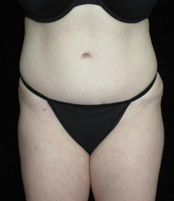 36 year old woman treated with Tummy Tuck after 2637564