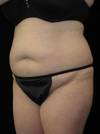 36 year old woman treated with Tummy Tuck 2637564