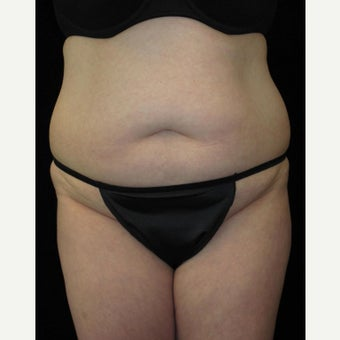 36 year old woman treated with Tummy Tuck before 2637564