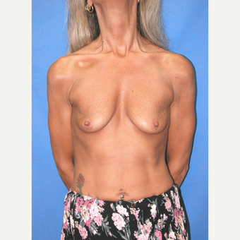 45-54 year old woman treated with Breast Implants before 3100448