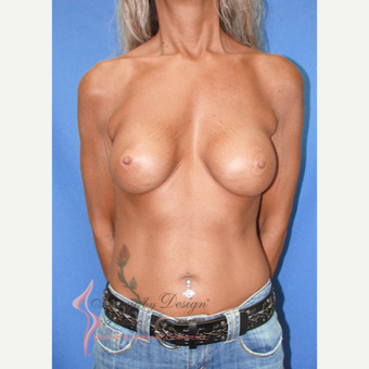 45-54 year old woman treated with Breast Implants after 3100448