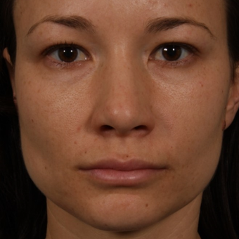 25-34 year old woman treated with Rhinoplasty before 3092346