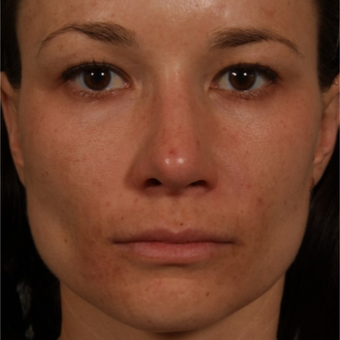 25-34 year old woman treated with Rhinoplasty after 3092346