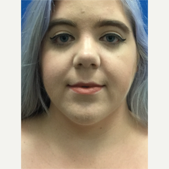 25-34 year old woman treated with Chin Surgery after 3414311