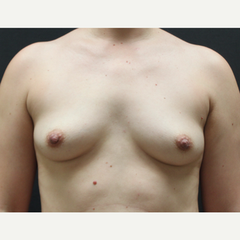 25-34 year old woman treated with Breast Augmentation before 3768698