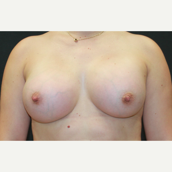25-34 year old woman treated with Breast Augmentation after 3768698