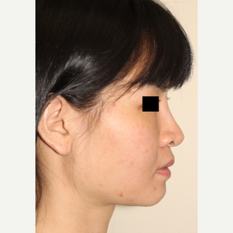 18-24 year old woman treated with Revision Rhinoplasty before 3506657