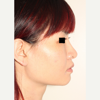 18-24 year old woman treated with Revision Rhinoplasty after 3506657