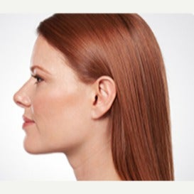 35-44 year old woman treated with Kybella after 2582673