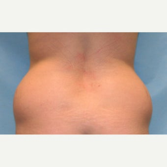 25-34 year old woman treated with Liposuction 1817588