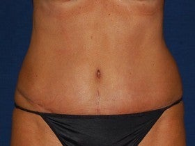 Tummy Tuck after 1115427