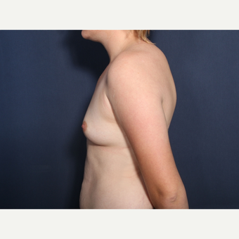 18-24 year old woman treated with Breast Augmentation (view 2 of2) before 3782383