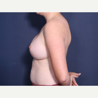 18-24 year old woman treated with Breast Augmentation (view 2 of2) after 3782383