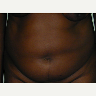 35-44 year old woman treated with Tummy Tuck before 2745807