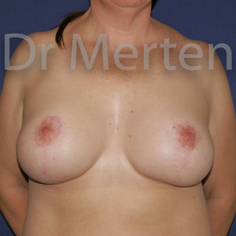 35-44 year old woman treated with Breast Lift with Implants after 3591911