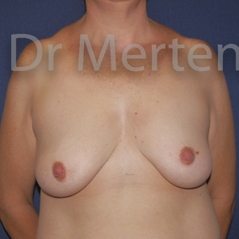 35-44 year old woman treated with Breast Lift with Implants before 3591911