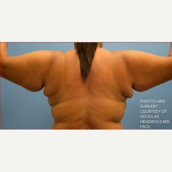 25-34 year old woman treated with Smart Lipo Triplex to Midback, Upper Arms and Axillary Fat Pads before 2198718