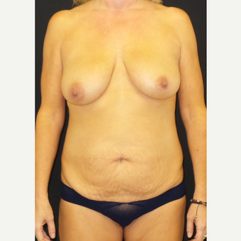 45-54 year old woman treated with Mommy Makeover before 3306116