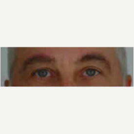 Eyelid Surgery after 3058026