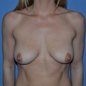 25-34 year old woman treated with Breast Lift with Implants before 3488599