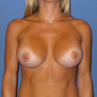 25-34 year old woman treated with Breast Lift with Implants after 3488599