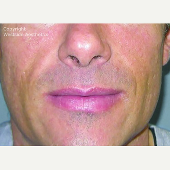 Bellafill Permanent Filler for Nasolabial Folds after 2988752