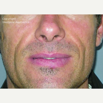 Bellafill Permanent Filler for Nasolabial Folds before 2988752