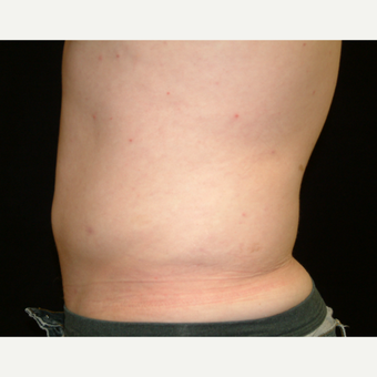 18-24 year old man treated with Liposuction Abdomen after 3141966
