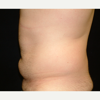 18-24 year old man treated with Liposuction Abdomen before 3141966