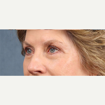 Eyelid Surgery after 3123730