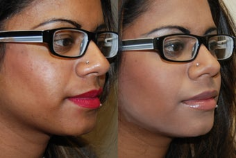 Silikon-1000 lip augmentation. before 1414639