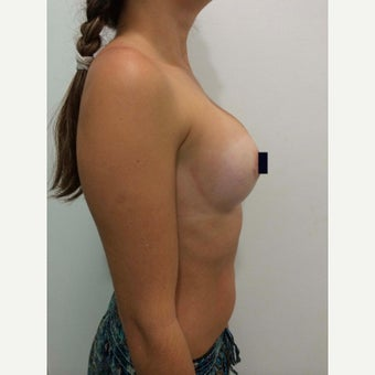 25-34 year old woman treated with Breast Implants 1844776