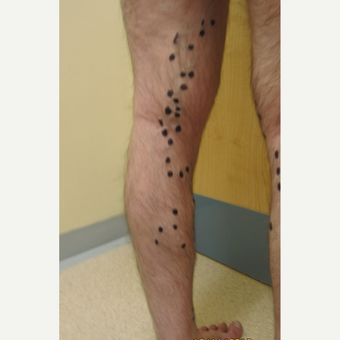25-34 year old man treated with Sclerotherapy before 2984766