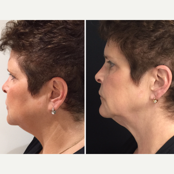 55-64 year old woman treated with Kybella before 3169501