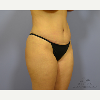 25-34 year old woman treated with Tummy Tuck after 3422055