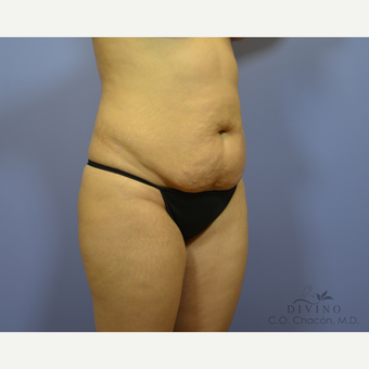 25-34 year old woman treated with Tummy Tuck before 3422055