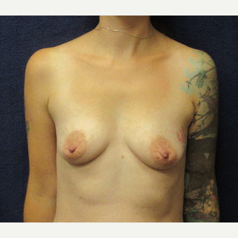 35-44 year old woman treated with Breast Augmentation before 3399845