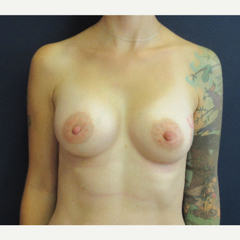 35-44 year old woman treated with Breast Augmentation after 3399845