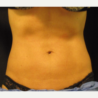 35-44 year old woman treated with Exilis after 2713576