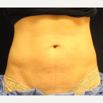 35-44 year old woman treated with Exilis before 2713576