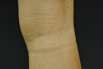 Sclerotherapy after 1207996